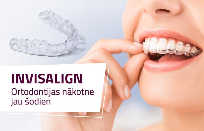 Invisalign –ortodontijas nākotne jau šodien!