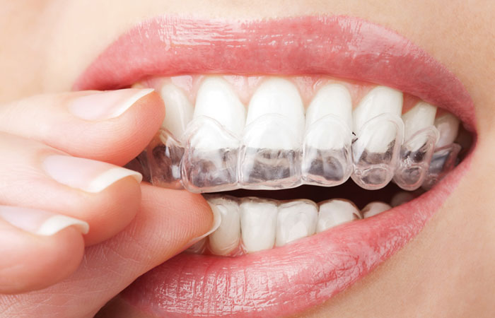 7 myths about the use of braces