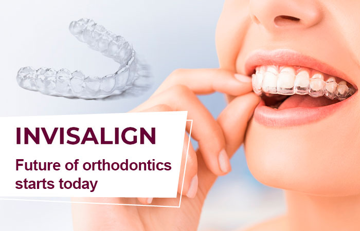 INVISALIGN – FUTURE OF ORTHODONTICS STARTS TODAY